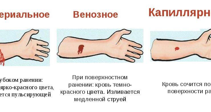 Первая помощь при артериальных и венозных кровотечениях